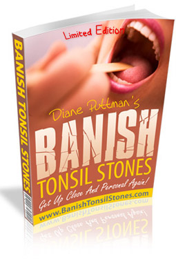 how to cure Tonsil Stones at home naturally